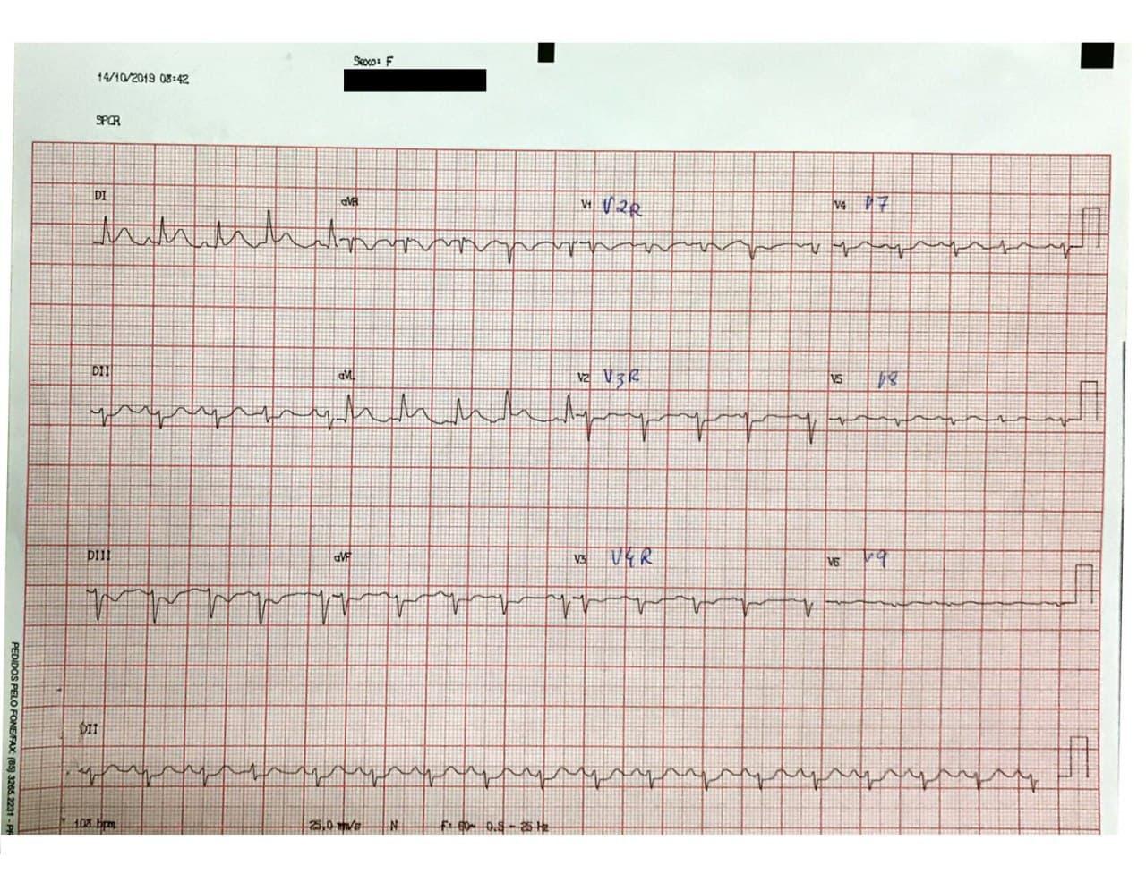 Mujer de 82 años hipertensa cursando IAM por compromiso de la arteria marginal de la Cx