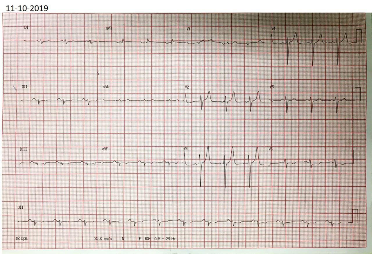 Hombre de 44 años con antecedente de IAM hace 6 meses con implante de stent a la DA que presenta epigastralgia ante esfuerzos desde hace tres días por nuevo compromiso de Cx que presenta complejos de bajo voljaje en derivaciones de los miembros como expresión de miocardiopatía isquémica
