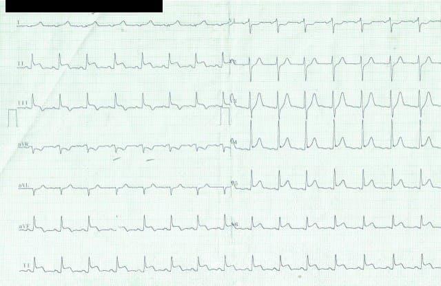 Hombre de 20 años cursando cuadro viral agudo con dolor porecordial y dificultad respiratoria con troponina elevada debido a miopericarditis aguda
