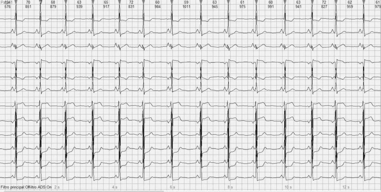 Mujer de 22 años portadora de miocardiopatía hipertrófica no obstructiva con antecedentes de MS familiar