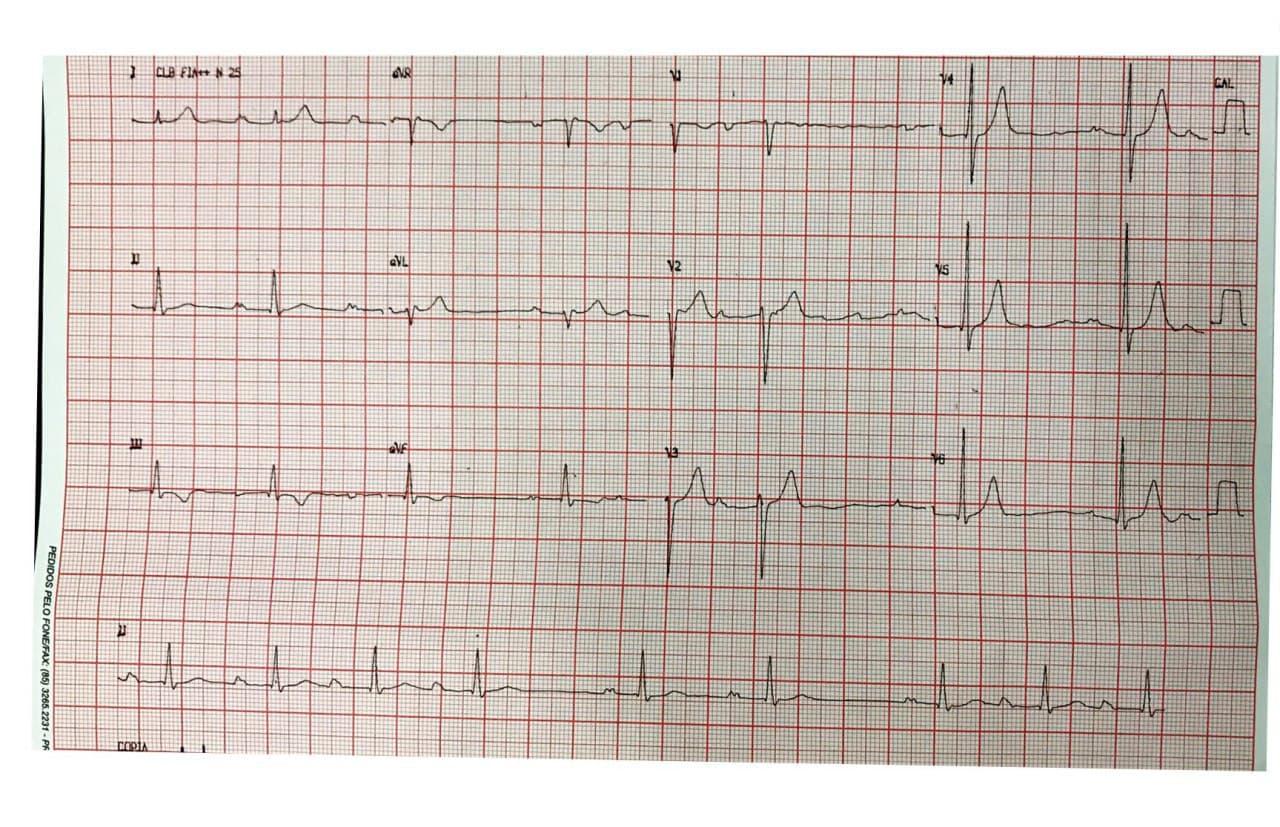 Varón de 22 años con palpitaciones que presenta soplo de insuficiencia mitral y que desarrolla TV sostenida y no sostenida cuya RNM demostró presencia de miocarditis activa
