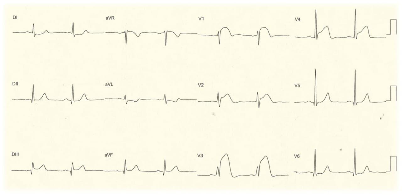 Paciente con infarto de VD por compromiso de la arteria CD