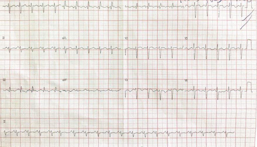 Paciente de 51 años que presenta disnea progresiva por TEP múltiple bilateral con patrón S1Q3T3