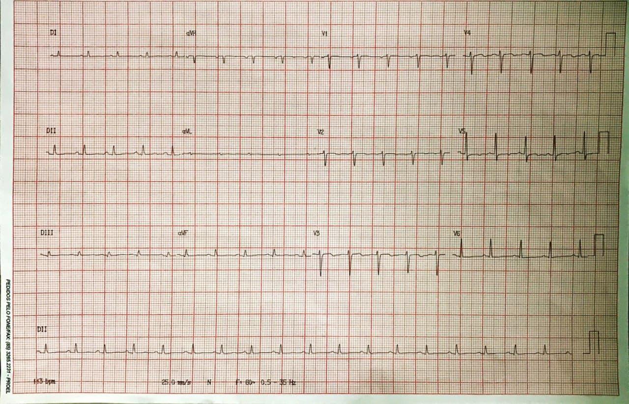 Mujer de 56 años mastectomizada hace 5 años, asintomática, con derrame pericárdico severo crónico de lenta progresión