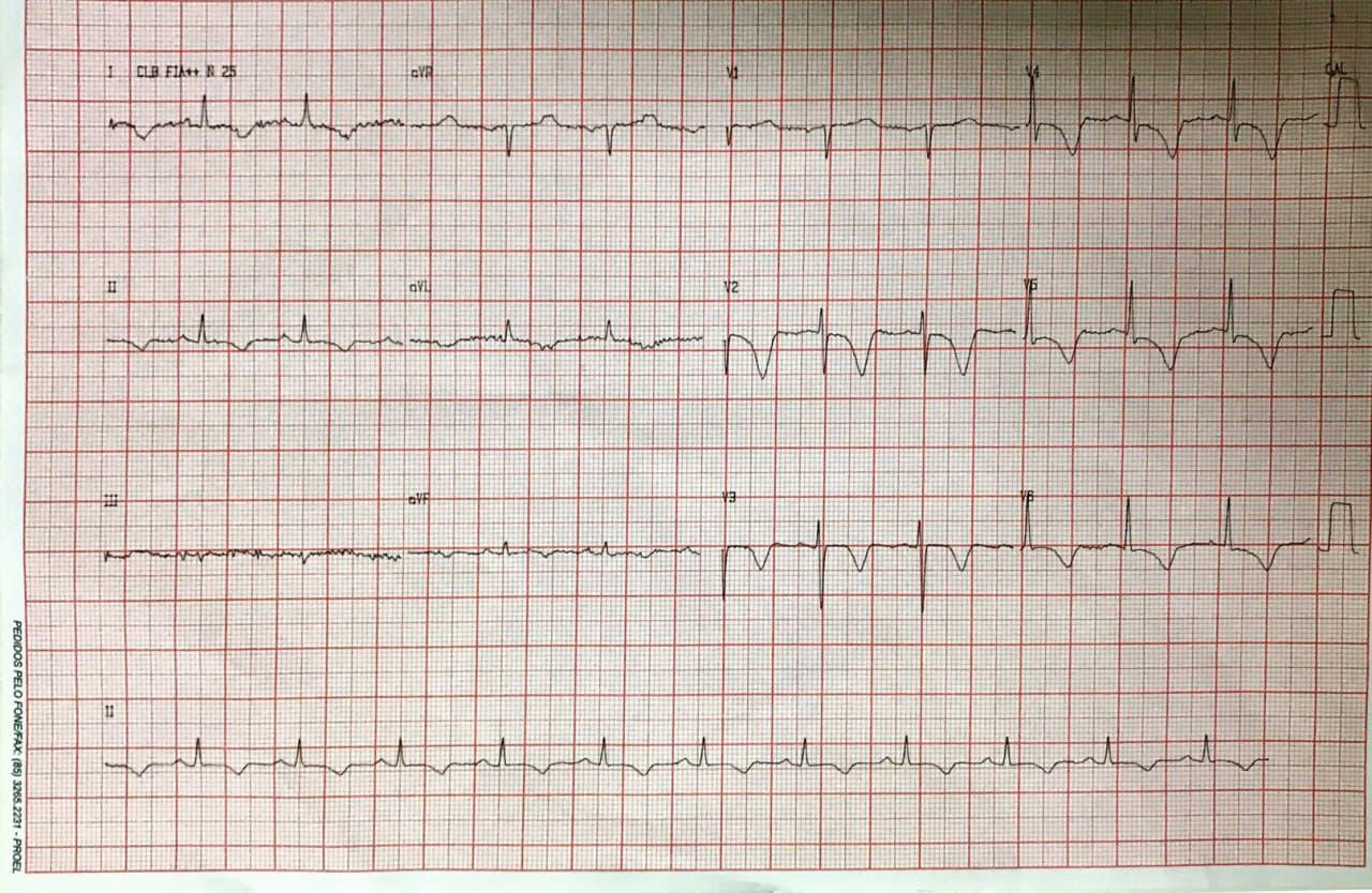 Mujer de 84 años que presenta episodio de angor prolongado con ondas T negativas difusas por presencia de tortuosidades coronarias