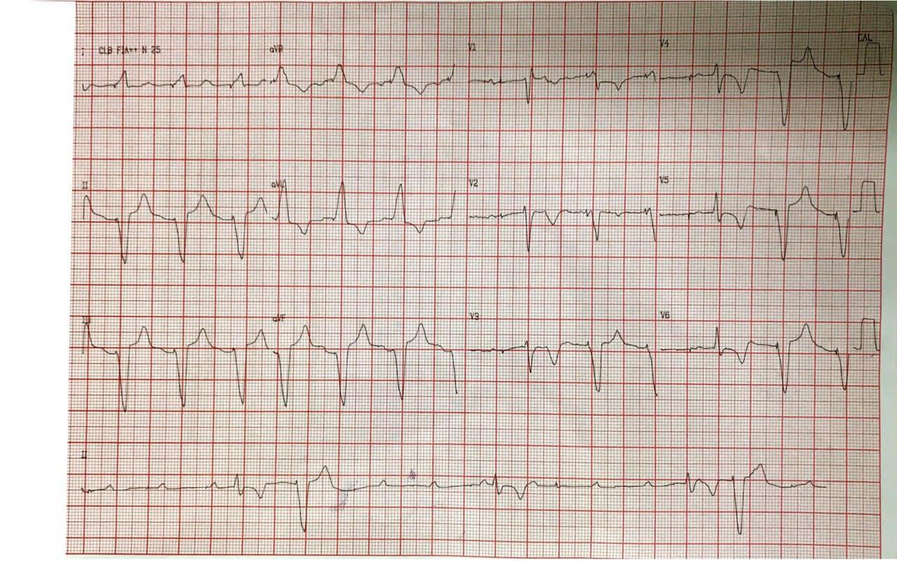 Mujer de 57 años que presenta episodio sincopal por BAVC que requiere implante de MP transitorio, constatándose ondas T negativas como expresión de memoria cardíaca y presencia de arterias coronarias normales en la CCG