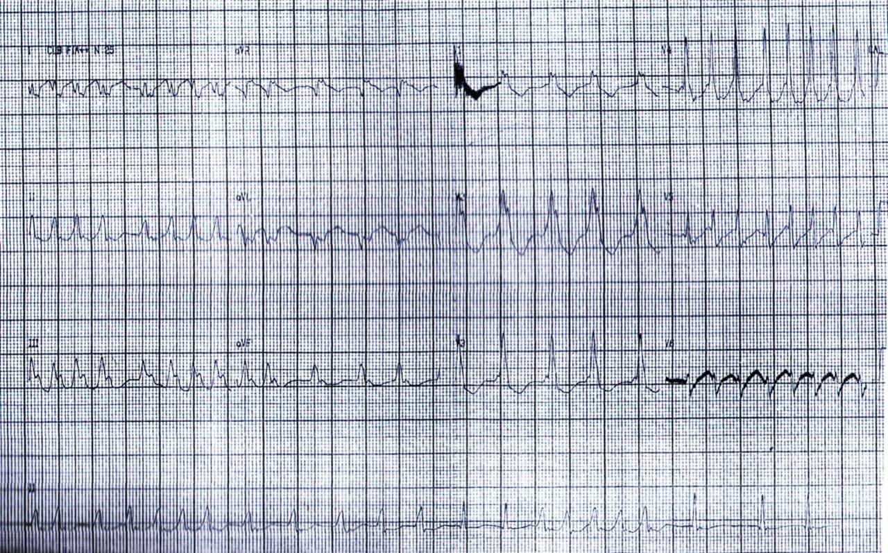 Paciente masculino de 26 años que presenta palpitaciones y síncope por presentar FA preexcitada que requiere CVE
