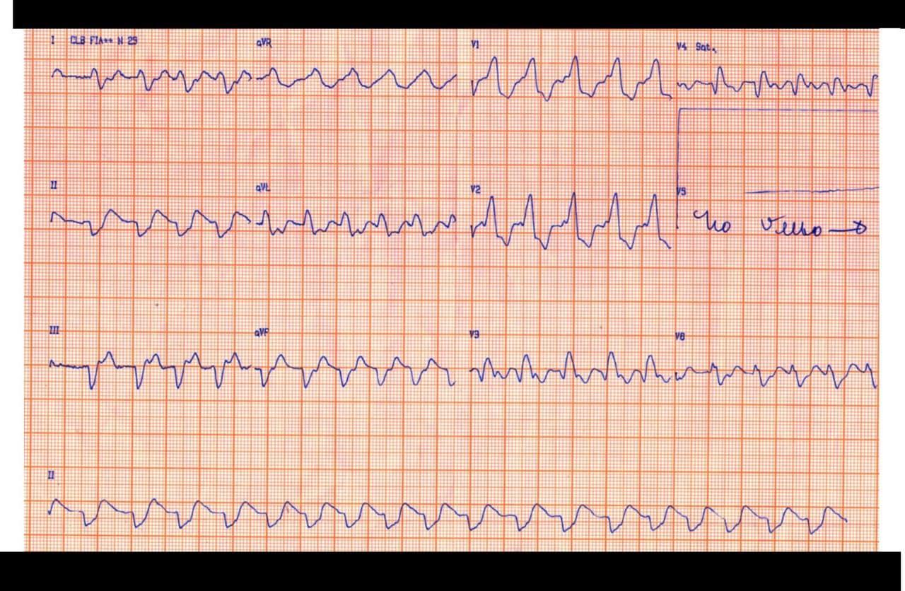 Paciente con cuadro de insuficiencia cardíaca cuyo ECG presenta una FA con BCRD muy ancho debido a franca hiperkalemia que mejora con tratamiento
