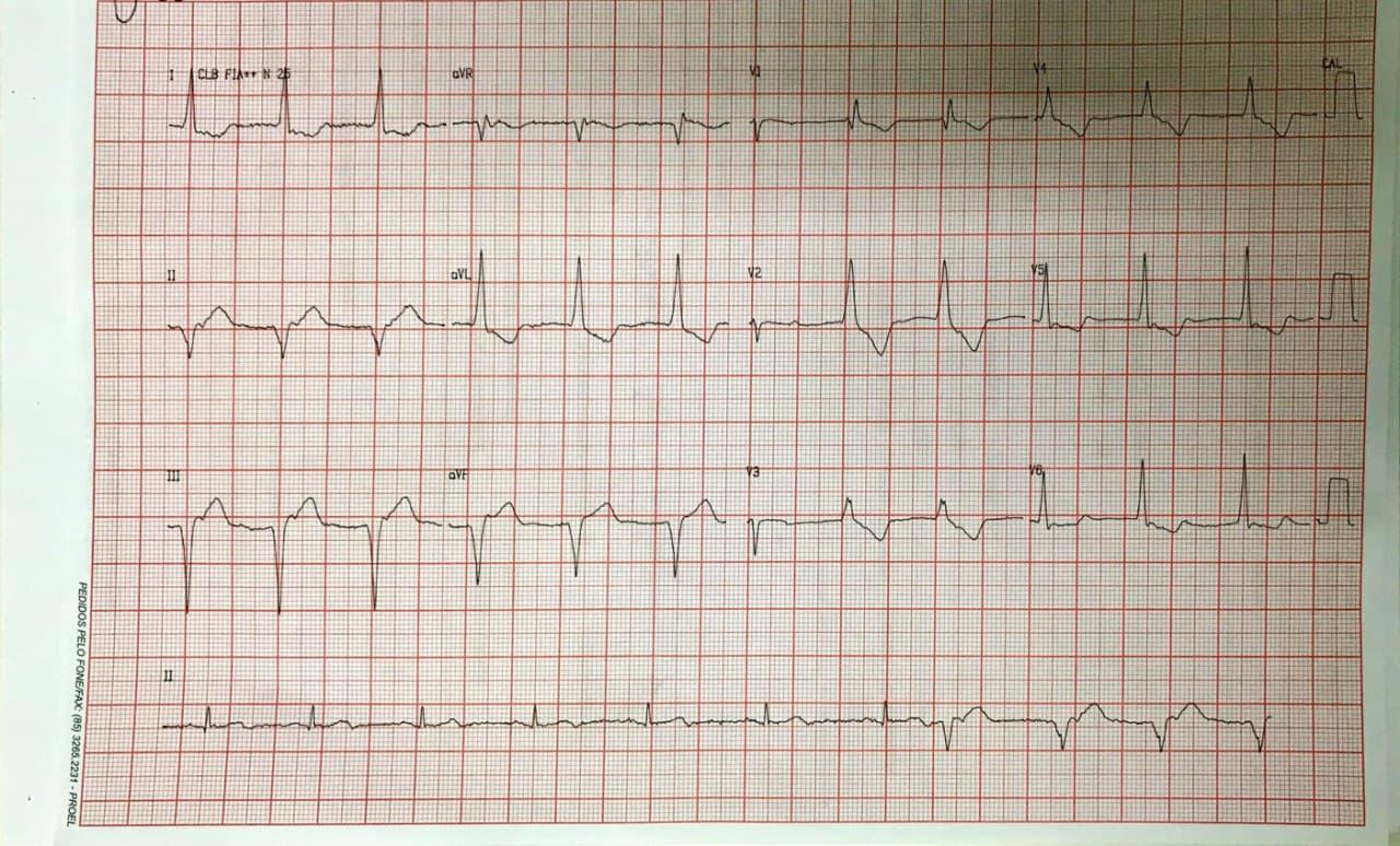 Paciente masculino con factores de riesgo que presenta angor prolongado por SCA con reperfusión espontánea incompleta manisfestada por RIVA + ondas T +- en DII