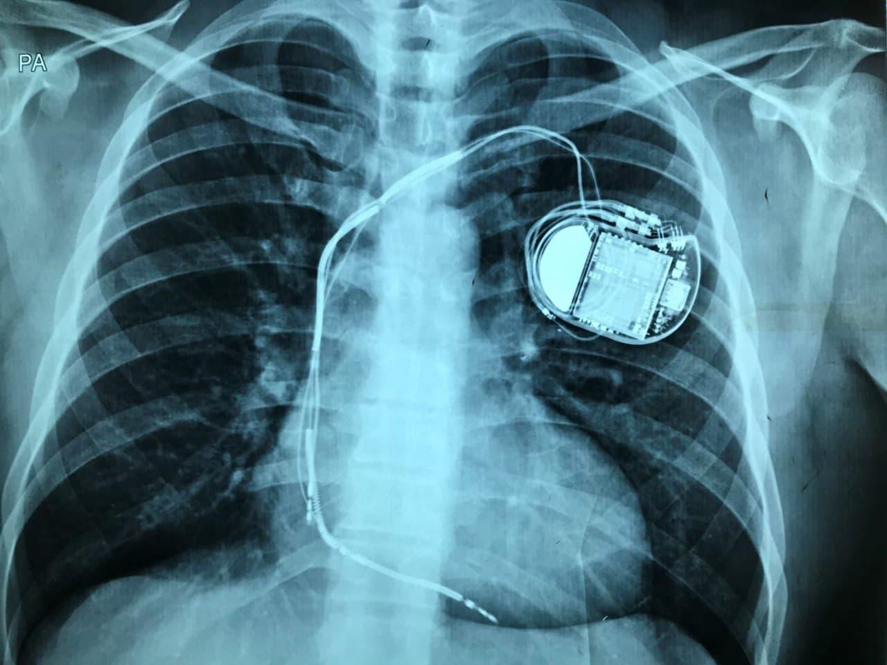 Paciente afectado de miocardiopatía hipertrófica portador de CDI que presenta múltiples descargas del dispositivo por fractura del electrodo