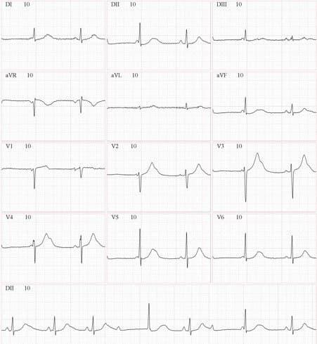 Niña de 15 años sin cardiopatia estructural, con episodios sincopales por presencia de BAVC en contexto de SQTL