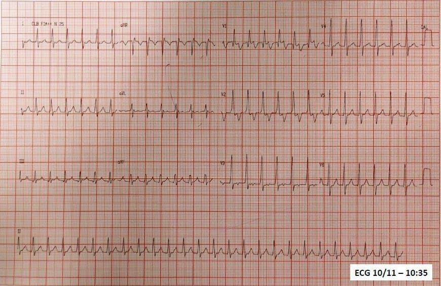 Paciente masculino de 25 años con palpitaciones incesantes desde hace 4 días por presencia de Taquicardia Auricular que revierte con adenosina quedando por momento con TA con BAV variable