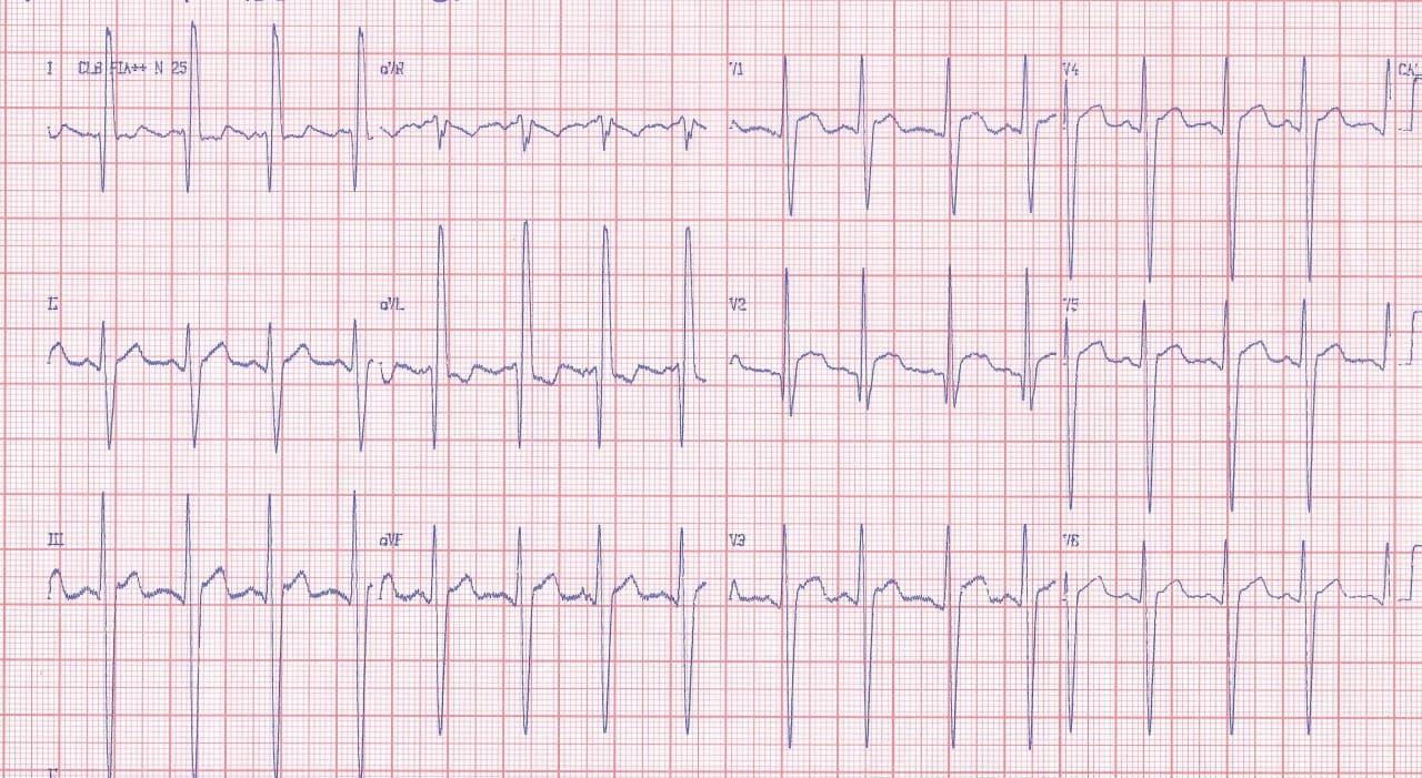 Paciente de 18 años con cuadro de insuficiencia cardíaca en clase III por ser portador de distrofia muscular de Duchenne