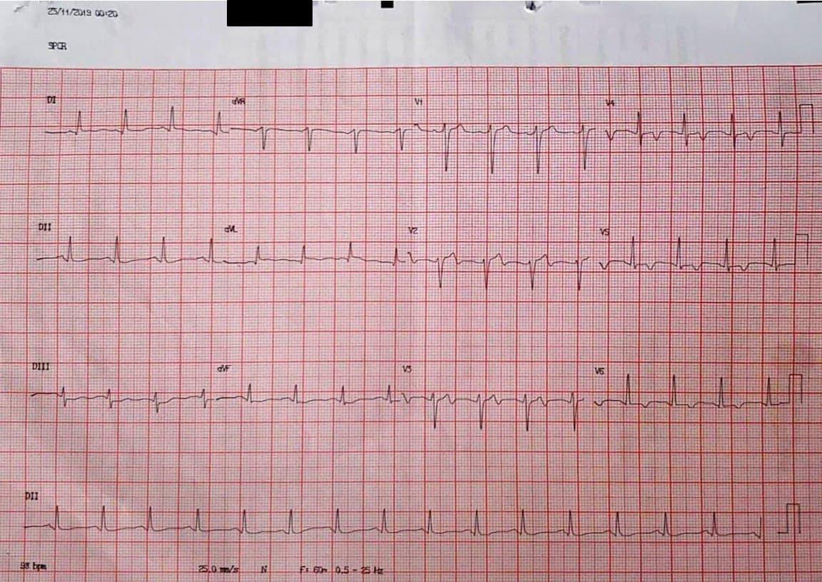 Paciente de 55 años que presenta episodio de angor prolongado determinado por SCA originado en un hematoma subintimal de la DA constatado por IVUS