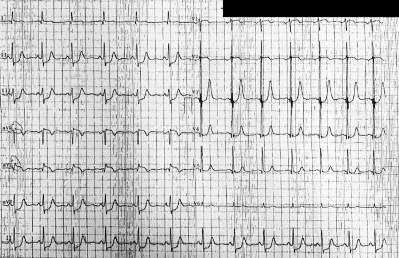 Hombre de 55 años que presenta episodios de angor de reposo por severa enfermedad coronaria con obstrucción de 100% de Cx