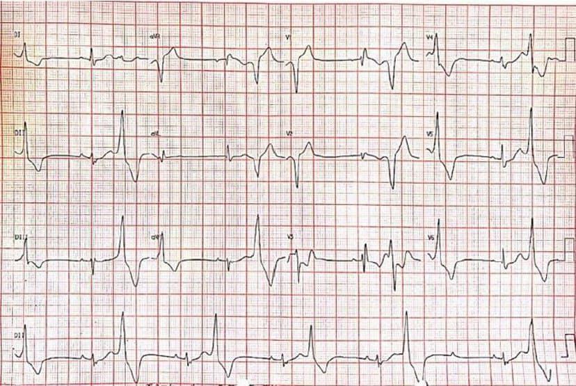 Mujer de 32 años con disnea progresiva y malestar general desde hace dos años que presenta bloqueo 2:1 asociado a BCRD, con ecocardiograma normal y serología para Chagas no reactiva, en espera de RNM