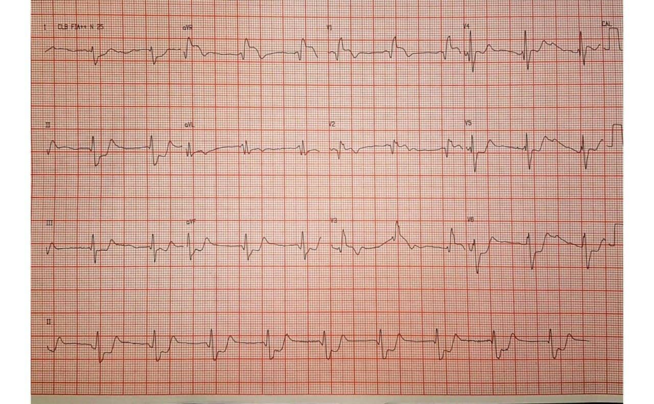 Hombre de 52 años que presenta angor prolongado luego de consumo de cocaína por presentar severas lesiones coronarias difusas incluyendo TCI con trombos