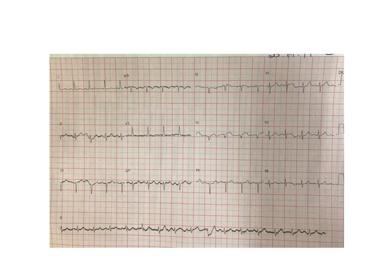 Hombre de 81 años portador de miocardiopatía dilatada que presenta episodios de BAV 2:1 en quién se coloca electrodo cercano al Haz de His tendiente a estimulación con vista a TRC