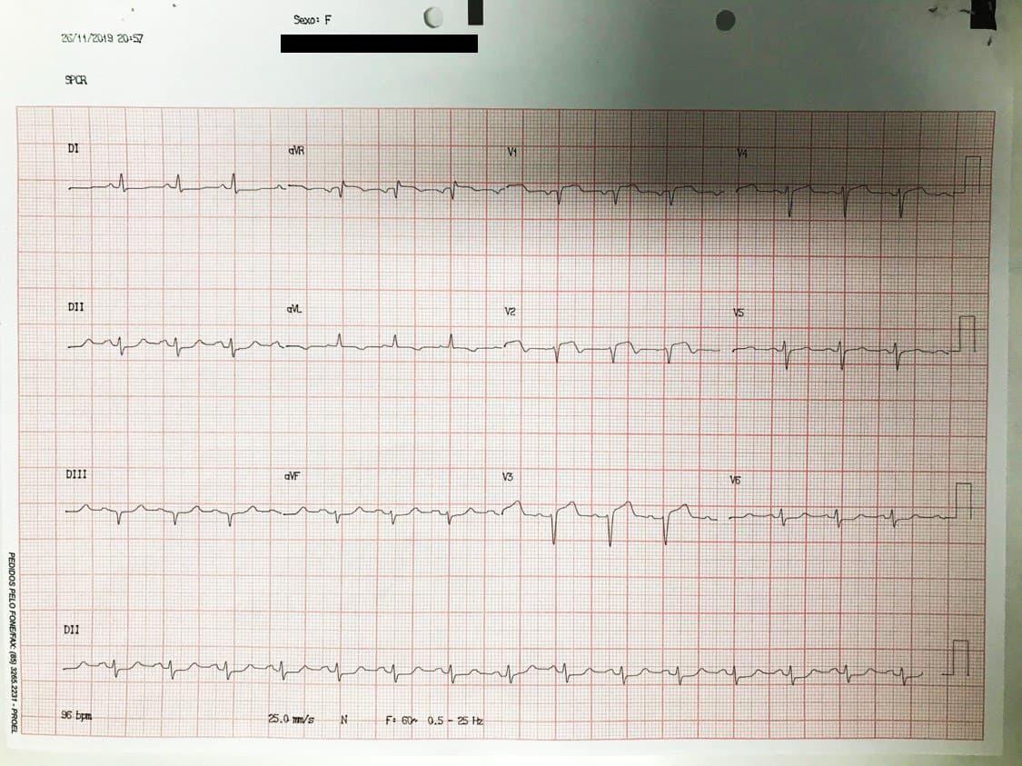 Mujer de 73 años hipertensa y diabética con antecedentes de implantes de by pass de safena a DA y Cx que presenta angor prolongado por trombo en puente de safena a DA