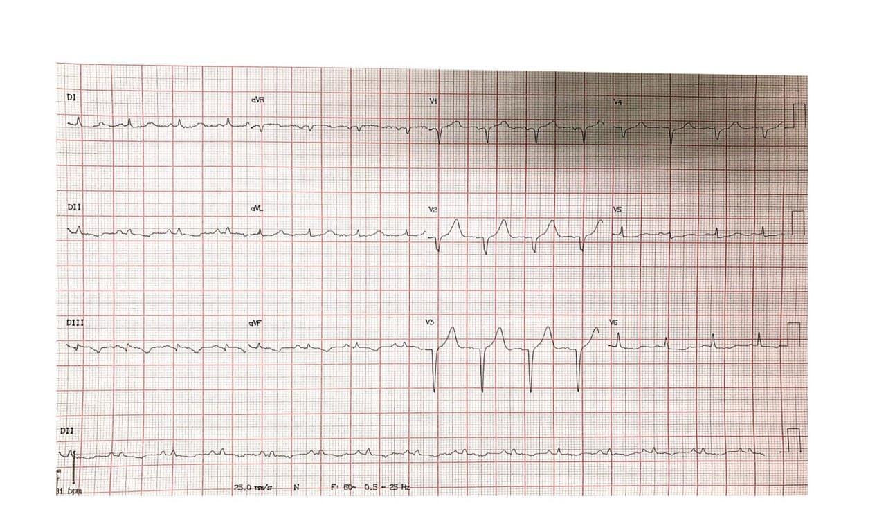 Hombre de 52 años portador de enfermedad coronaria difusa con angor prolongado por SCA por presencia de suboclusión con trombo de Cx, vaso culpable