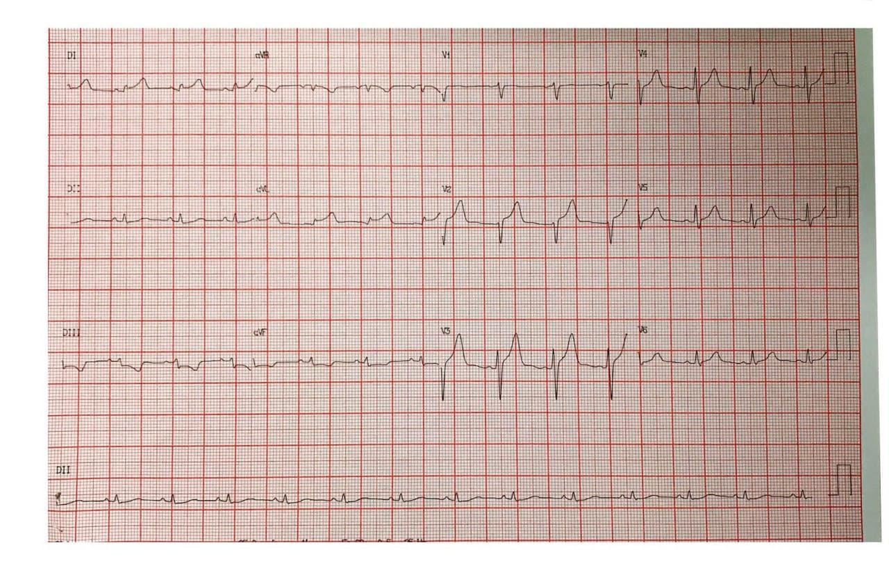 Hombre de 34 años sin antecedentes que presenta episodio de angor prolongado por la madrugada constatándose ausencia de lesiones angiográficas lo que permite establecer el diagnóstico de MINOCA