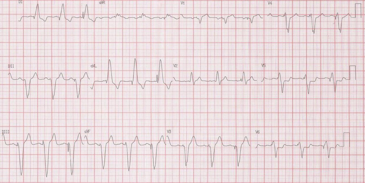 Paciente de 61 años con insuficiencia renal crónica no dialítica que presenta episodio de angor, ortopnea, DPN, edemas en MMII y plenitud gástrica portador de MP, que presenta signo de Sgarbossa + por compromiso de la DA con trombo
