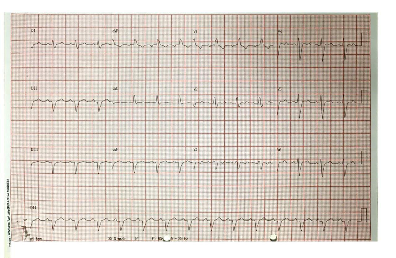 Paciente masculino de 51 años con serología reactiva para Chagas que presenta precordialgia atípica con cambios de movilidad segmentaria  ínferolateral en ecocardiograma