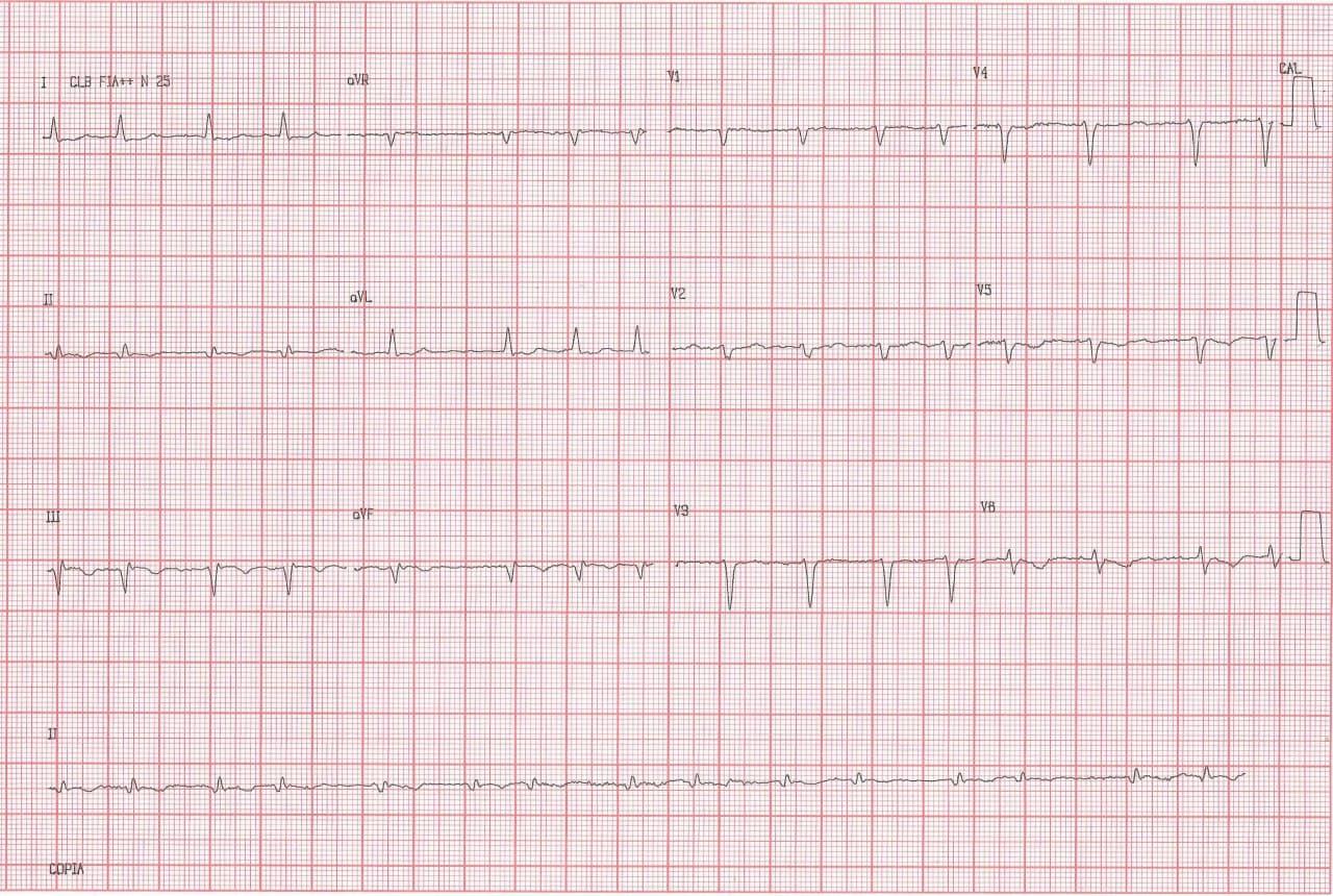 Mujer de 53 años, HTA y DBT de larga data, portadora de enfermedad coronaria difusa con FA crónica que presenta descompensación concomitante a desarrollo de AA 2:1 con aberrancia y signos de hiperpotasemia