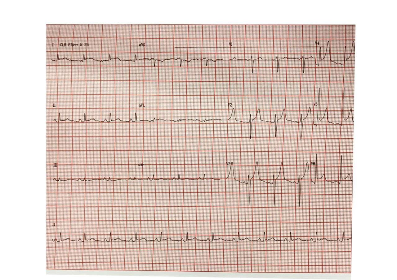 Paciente masculino de 56 años que refiere ardor precordial en quién se constata oclusión de primera diagonal