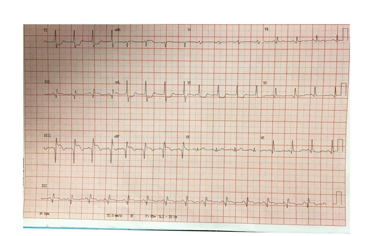 Paciente masculino diabético de 49 años que presenta SCA por oclusión con trombo en tercio medio de CD que se complica con ruptura cardíaca interna por CIV