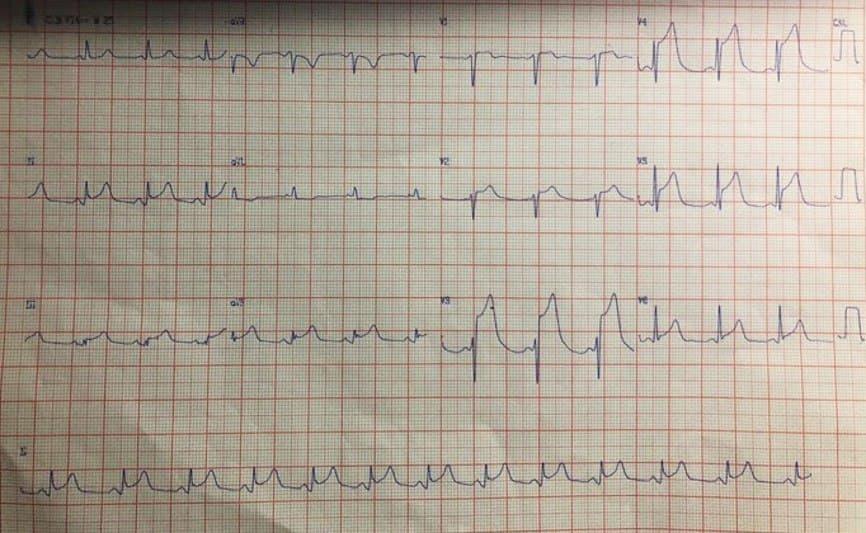 Hombre de 59 años con angor prolongado con cambios difusos del ST-T originados en oclusión con trombo en tercio medio de DA y puente miocárdico confirmados con IVUS