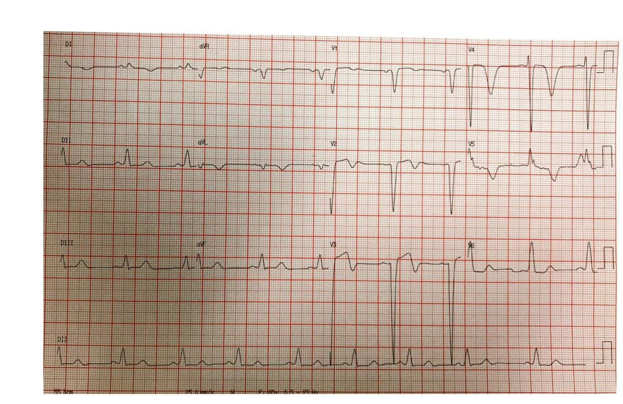 Hombre de 43 años con antecedentes de insuficiencia cardíaca que presenta disnea y mareos con presencia de miocardiopatía dilatada