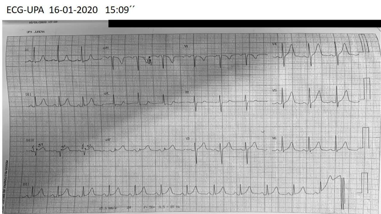 Mujer de 47 años con intenso episodio de ángor de reposo constatándose CCG normal e imágenes compatibles con miocardiopatía de Takotsubo