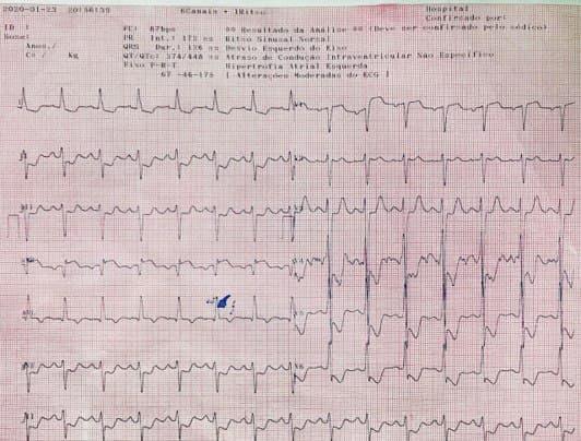 Paciente de 45 años en tratamiento dialítico por nefropatía hipertensiva que presenta isquemia circunsferencial y disección aórtica tipo A con evolución al óbito