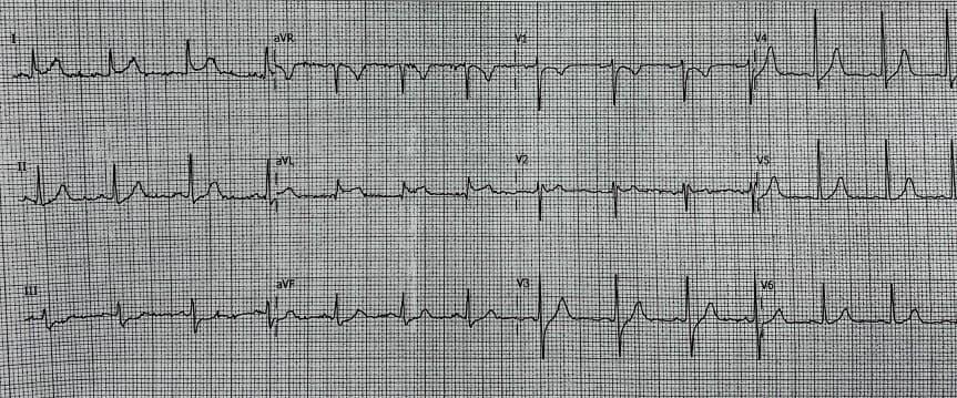 Paciente masculino de 23 años que comienza con dolor precordial, fiebre  y síntomas vagales atribuibles a la presencia de puente muscular que produce oclusión sistólica intermitente en tercio medio de DA