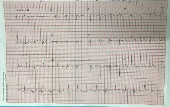 Mujer de 44 años portadora de doble lesión mitral a predominio de insuficiencia que manitiesta disfagia por compresión esofágica a quién se realiza reemplazo valvular cursando en el PO con signos de pericarditis