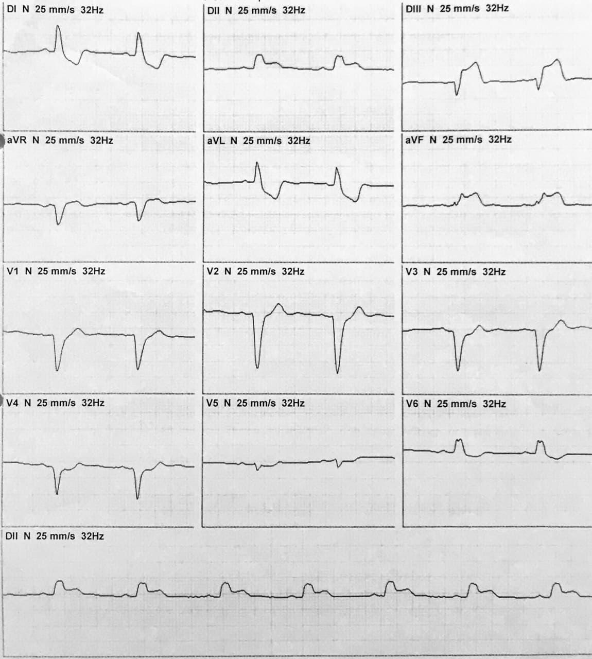Paciente de 55 años con antecedentes de enfermedad coronaria difusa rechazado de cirugía que presenta episodio de ángor prolongado y disnea sometido a trombolisis con signos de reperfusión de CD