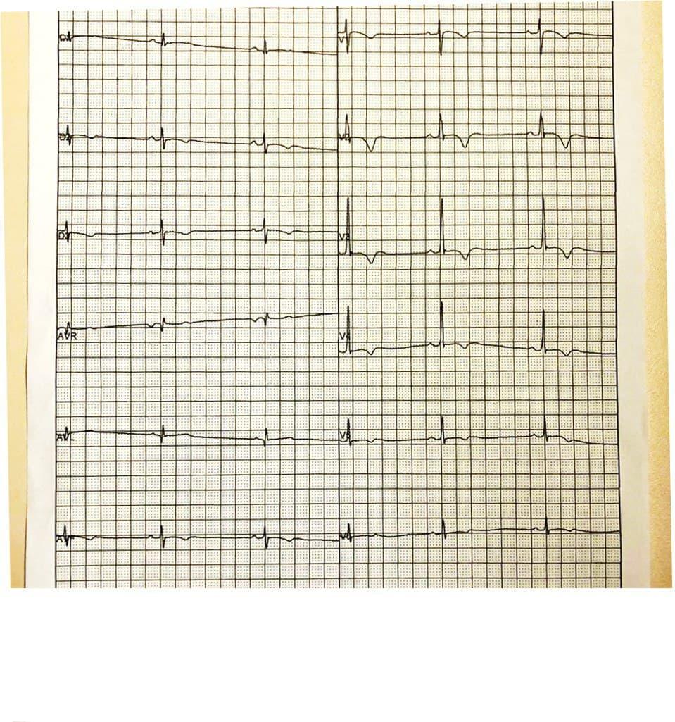 Hombre joven del que se carece de datos clínicos que en ECG de rutina presenta alteraciones en la repolarización que motivan realizarle RNM en la que se constatan signos de displasia arritmogénica del VD con compromiso del VI