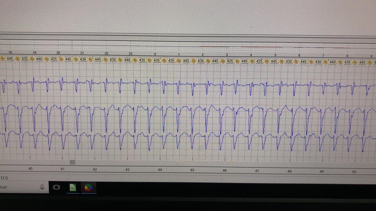 Holter de paciente masculino de 42 años con palpitaciones que presenta taquicardia incesante correspondiente a TV fascicular
