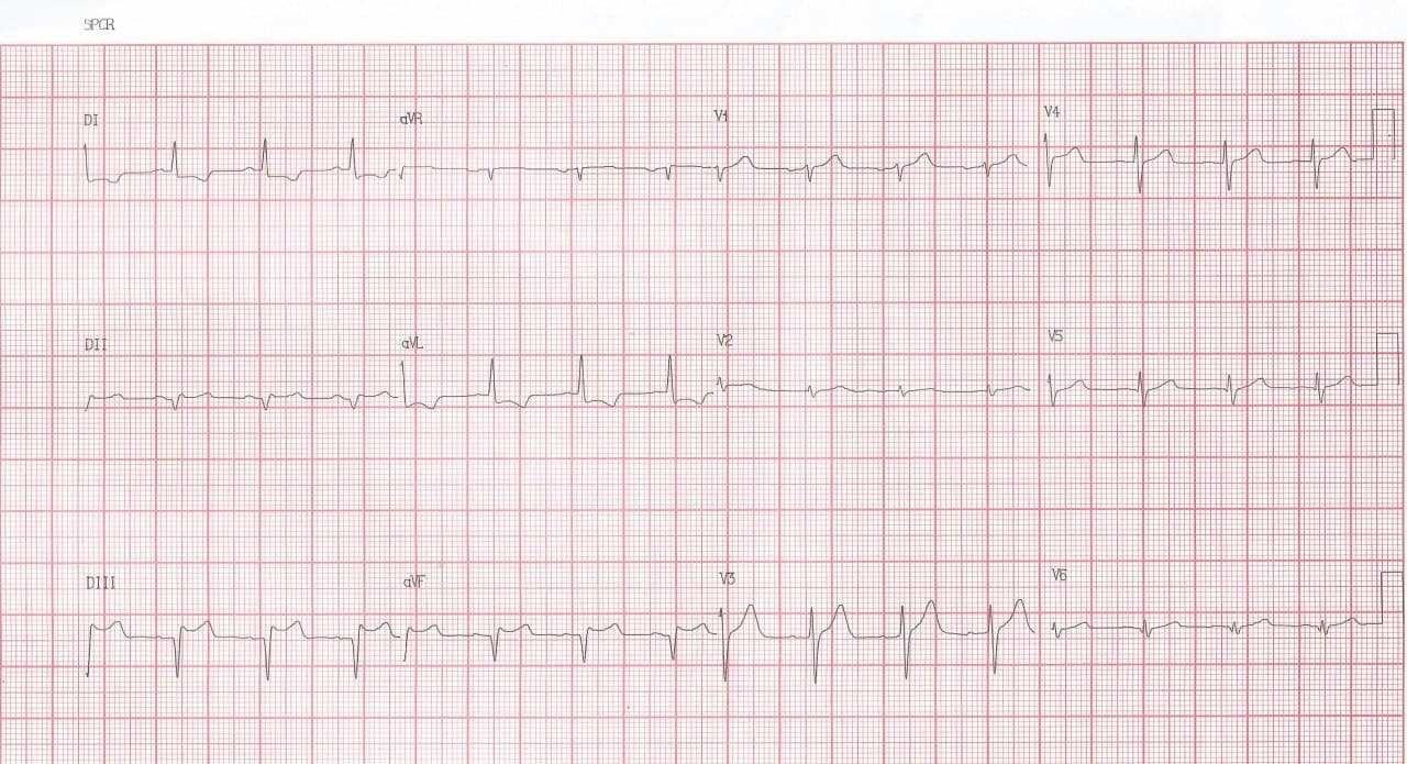 Hombre de 43 años con episodio de ángor prolongado que presenta enfermedad coronaria difusa con compromiso de TCI quién es derivado a cirugía de revascularización