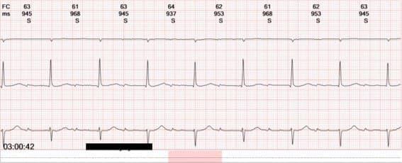 Mujer mayor con palpitaciones nocturnas con presentación electrocardiográfica poco habitual de una TRIN 2:1 confirmada en EEF con ablación posterior exitosa