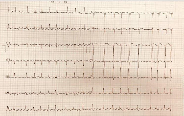 Hombre de 58 años hipertenso y fumador con disnea progresiva que presenta aleteo auricular con BAV variable atribuible a compromiso de la arteria DA