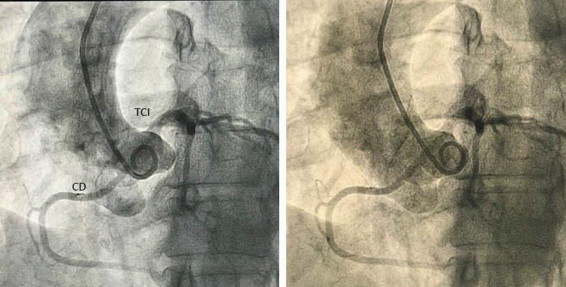 Mujer de 56 años, obesa, dislipémica y tabaquista con ángor de reciente comienzo, PEG + por ángor y ST que presenta nacimiento anómalo de CD