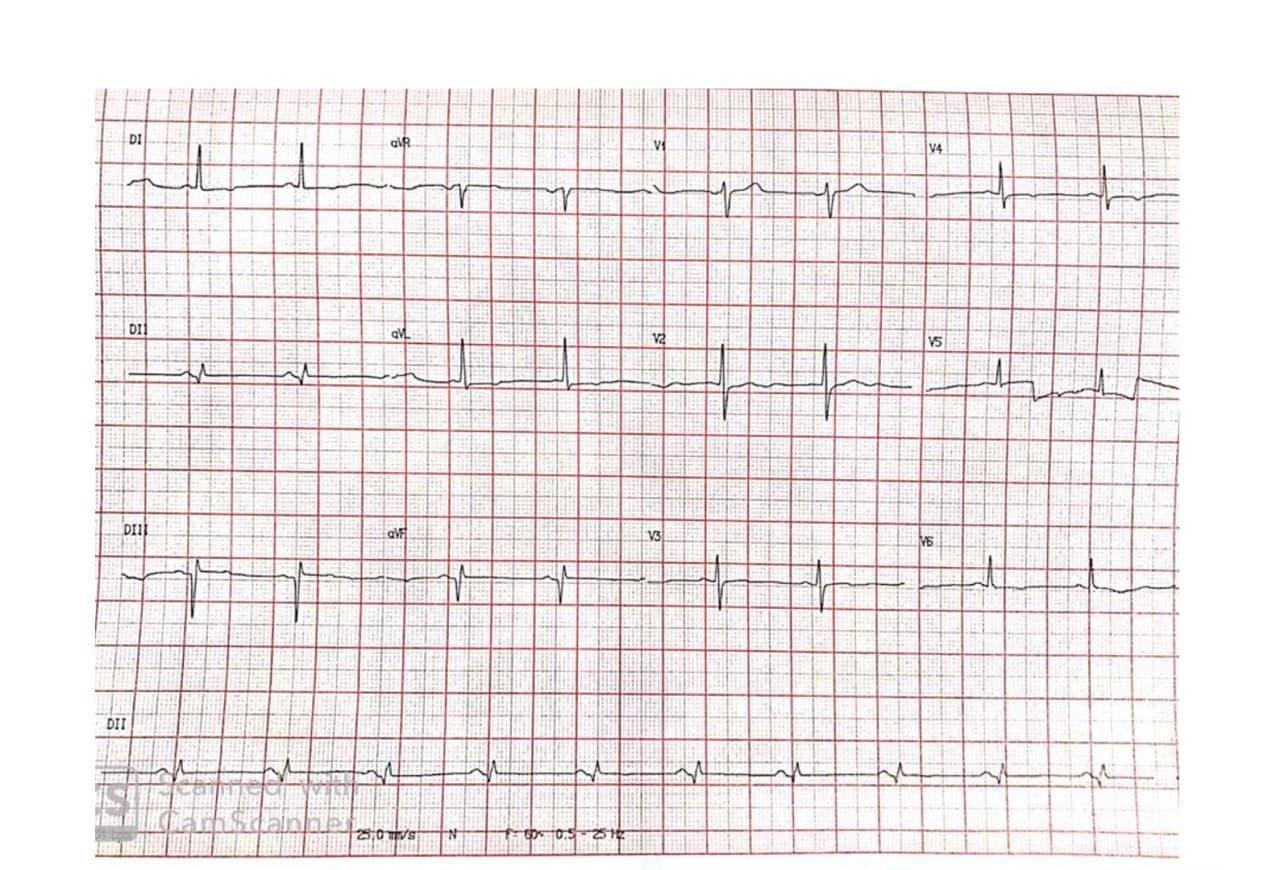 Mujer de 71 años con antecedentes de HTA, enfermedad coronaria revascularizada con ángor actual, hemangioma hepático, que presenta aneurisma con trombo + disección de la aorta proximal