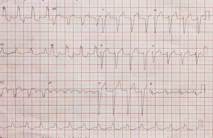 Hombre de 70 años con pico hipertensivo y disnea, que presenta necrosis ínferolateral y BCRI isquémico por compromiso de la Cx