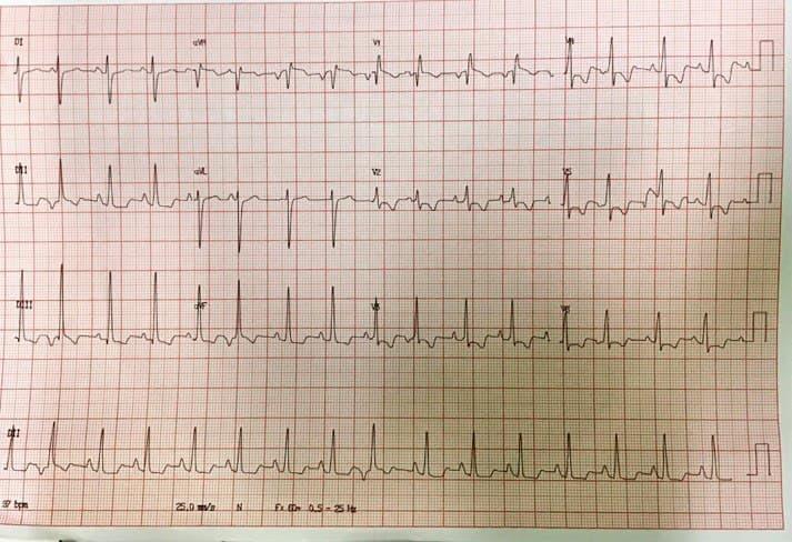 Mujer de 39 años con disnea progresiva y tos seca que presenta soplo sistólico en el foco pulmonar y segundo ruido hiperfónico sin desdoblamiento por CIA con cortocircuito significativo