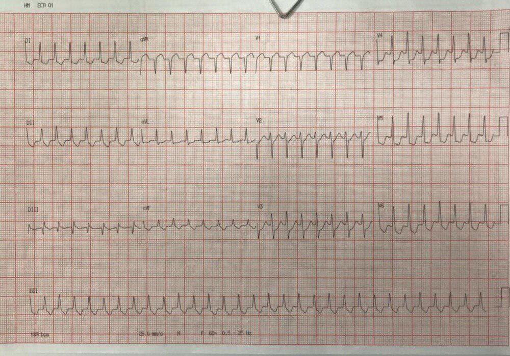 Mujer de 46 años con palpitaciones por TRIN que responde a adenosina, llamando la atención la depresión difusa del segmento ST en ausencia de enfermedad coronaria, atribuible a la propia taquicardia