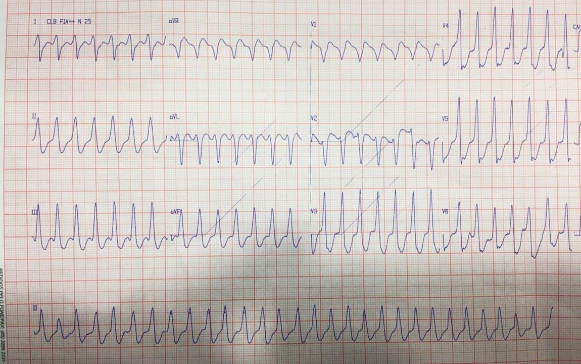Paciente de 50 años con palpitaciones debidas a taquicardia ventricular originada en área de fibrosis mesocárdica post miocardítica