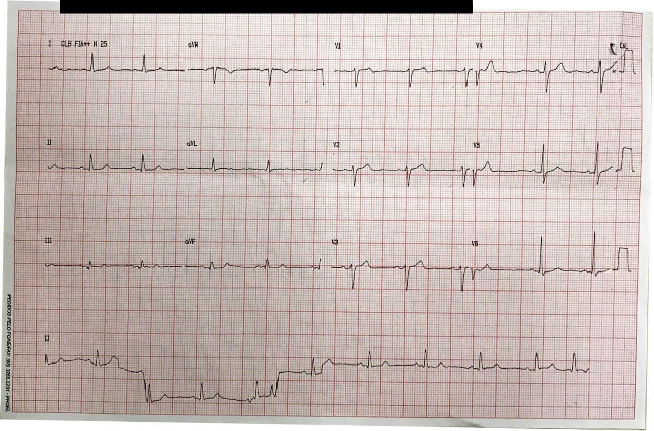 Hombre de 68 años con múltiples factores de riesgo que presenta ángor ante grandes esfuerzos por enfermedad coronaria con compromiso de DA y Cx y presencia de BIA-A