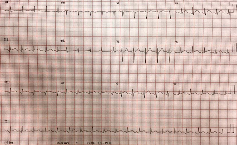 Paciente masculino de 44 años con intenso dolor precordial que desarrolla paro cardíaco por FV de la que es recuperado por presentar SCACEST por lesión con trombo de DA